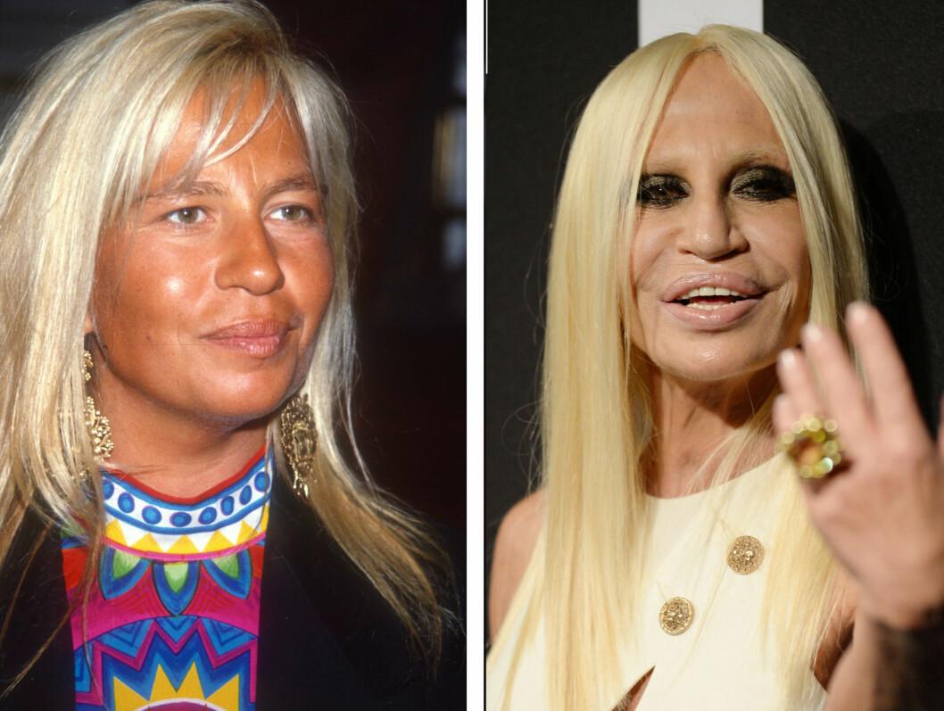<strong>DRASTISK TIL VERKS:</strong> Motelegende Donatella Versace har gjort MYE med ansiktet sitt de siste årene. Ifølge Daily Mail hevder motedronningen selv at hun kun har brukt botox og at hun har fantastiske hudpleieprodukter... Foto: All Over Press