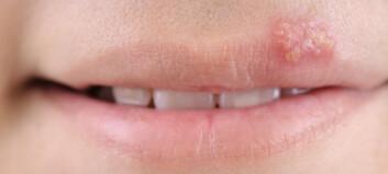 Sliter du med munnsår?