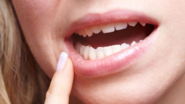 Munnskold behandling