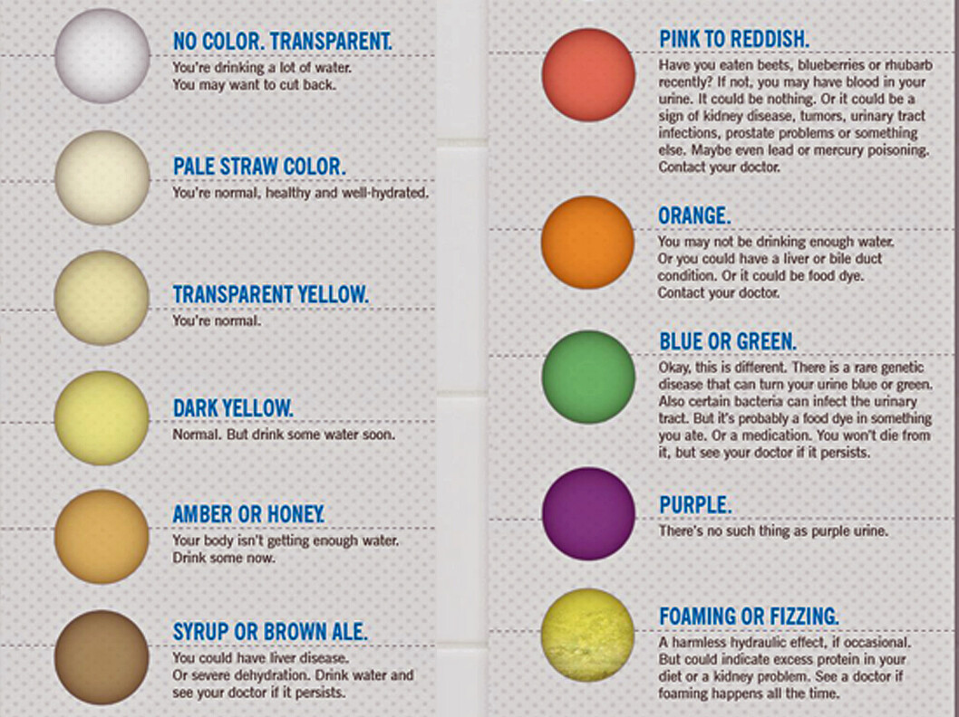 FARGE: Her er en forklaringer på hva fargen på urinen din betyr.  Foto: Cleveland Clinic
