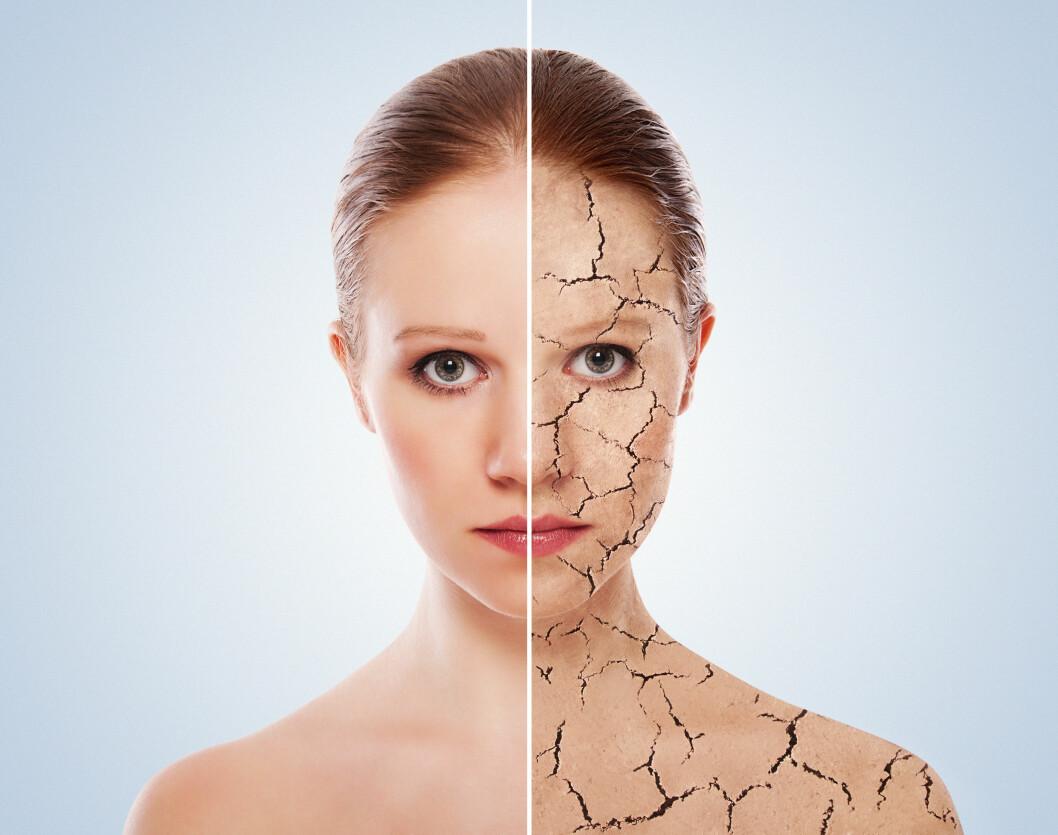 TØRR ELLER FET? Å vite hvilken hudtype du har, gjør det lettere å gi den den pleien den trenger. Når du velger produkter tilpasset din hudtype, vil huden være i bedre balanse.  Foto: evgenyatamanenko - Fotolia