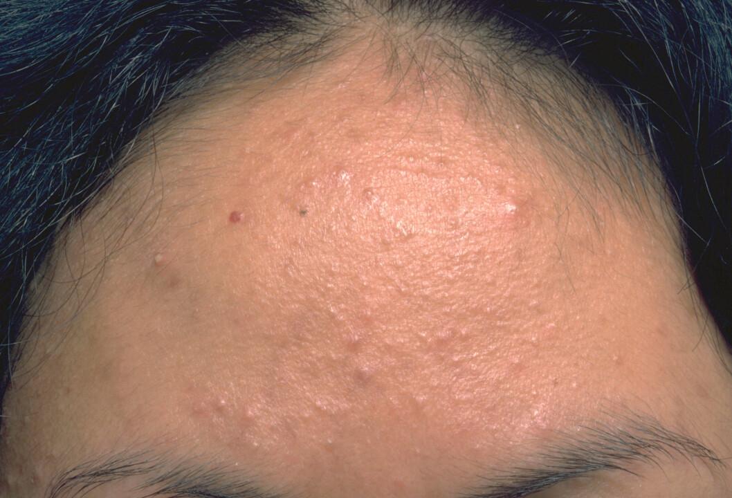 STRESS: Perioder med økt stress kan påvirke huden din negativt. En studie utført ved Stanford University i 2003 viste at studenter fikk en oppblomstring av akne under eksamensperioden. Foto: Medical-on-Line / Alamy/All Over Press