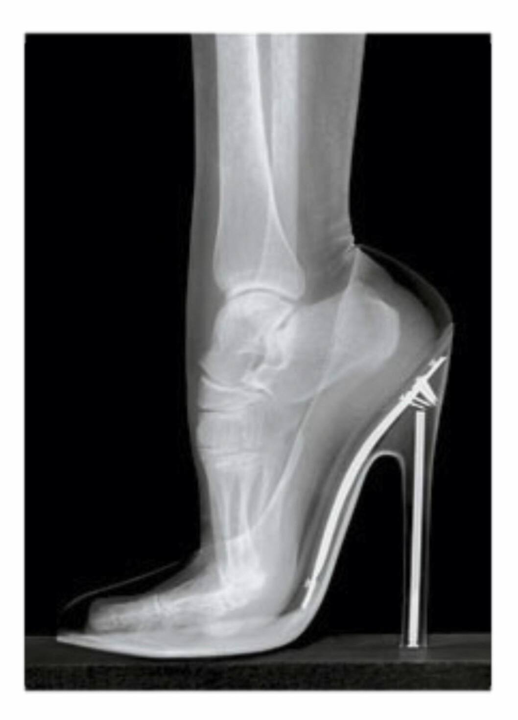 <strong>RØNTGEN:</strong> Ved hjelp av røntgen, kan man raskt se hvor unaturlig denne posisjonen egentlig er for foten.  Foto: Naprapatsenteret
