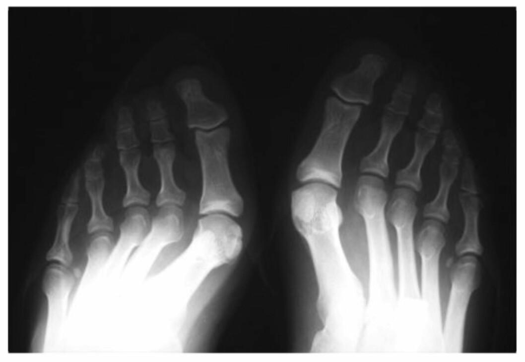<strong>FOTSKADER:</strong> Et vanlig problem som følge av mye høye hæler og trange sko er hallux valgus, som vil de at stortåen er blitt skjev og beveger seg i retning av lilletåen. Foto: Naprapatsenteret