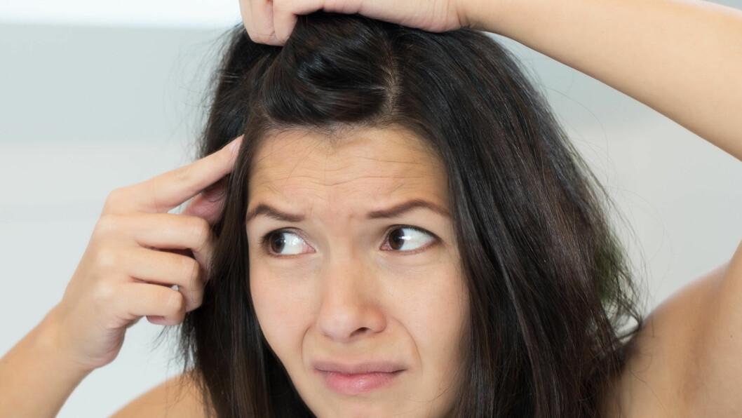 FLASS: De fleste som tror de har det, har egentlig bare tørr eller sensitiv hodebunn. Flass er en type sopp og er lett gjenkjennelig med sine store flak. Det er heller ikke smittsomt, slik mange tror.