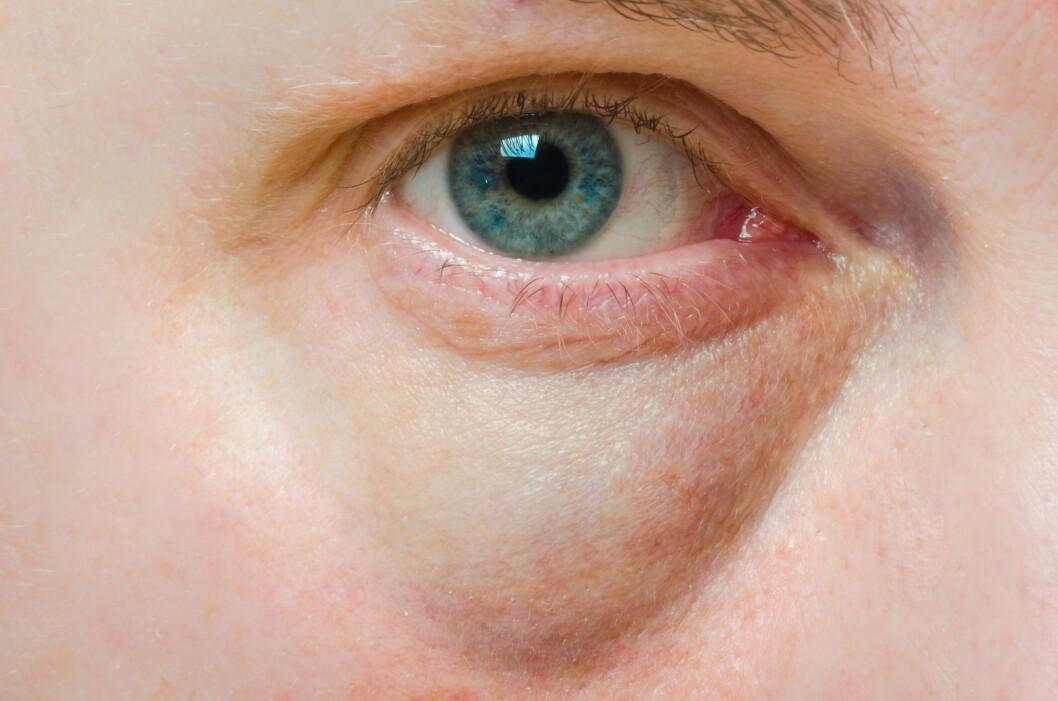 HOVNE ØYNE: Ok, nå er dette et veldig hovent øye, men for noen av oss ser ofte øynene slik ut om morgenen... Foto: roblan - Fotolia