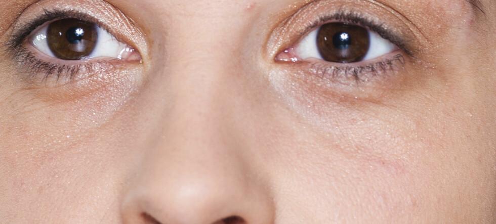 Mørke ringer under øynene?