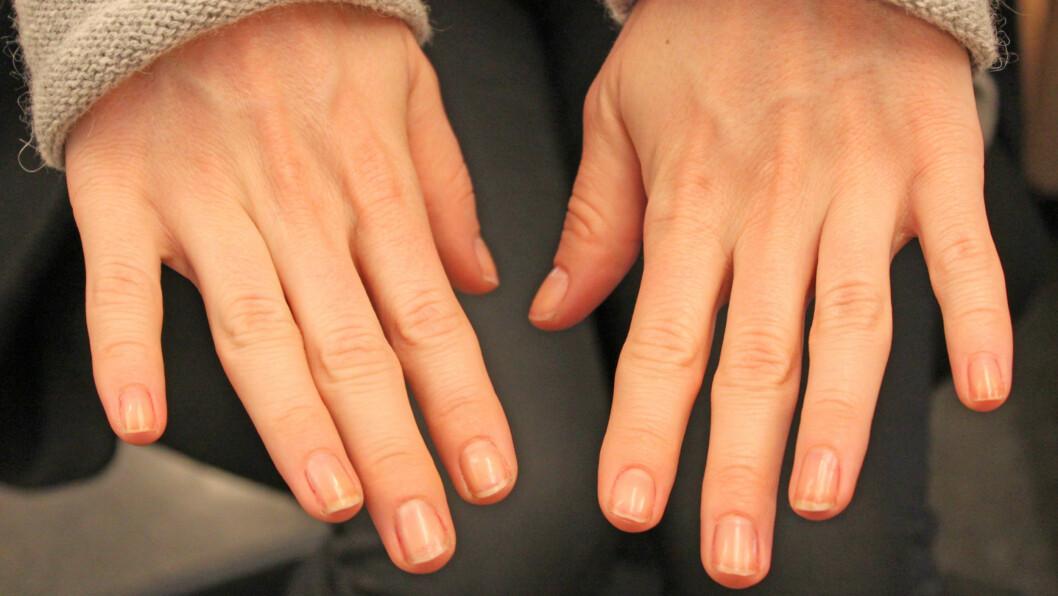 TØRRE? Negler trenger fukt og pleie, akkurat som huden. Smør dem jevnlig med olje og fuktighetskrem, eller gi dem et varmt oljebad om de virkelig begynner å flise seg opp.  Foto: A C. Blystad/ T. R. Engen