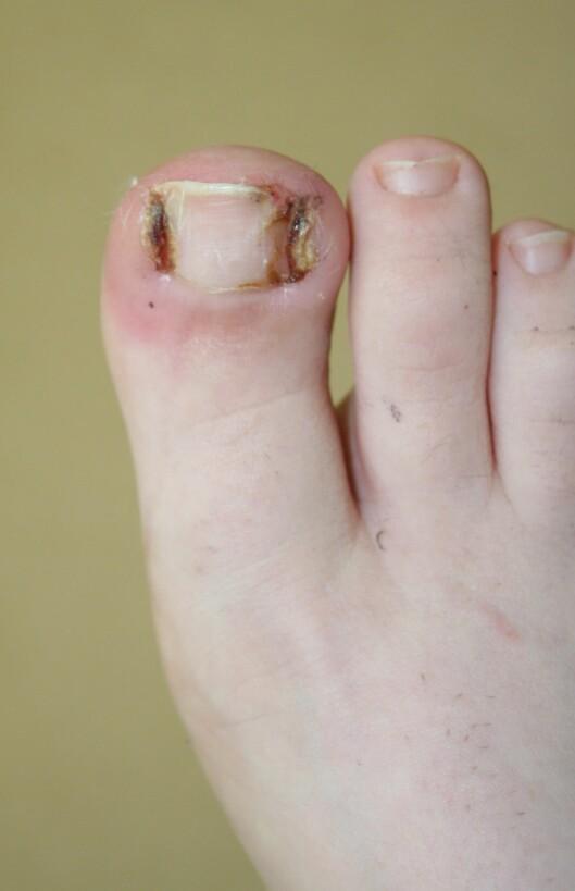 <strong>INNGRODD TÅNEGL:</strong> Slik ser en inngrodd tånegl ut - ikke særlig behagelig, og i verste fall må hele neglen fjernes kirurgisk.  Foto: Jeff Horn - Fotolia