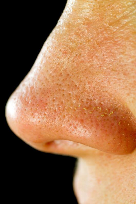 STORE PORER?: Store porer, eller synlige hudormer, er ikke noe vi kvinner elsker. Heldigvis er det mye du kan fikse med sminke! Tipsene får du i denne saken.  Foto: Nathalie Speliers Ufermann / Alamy/All Over Press