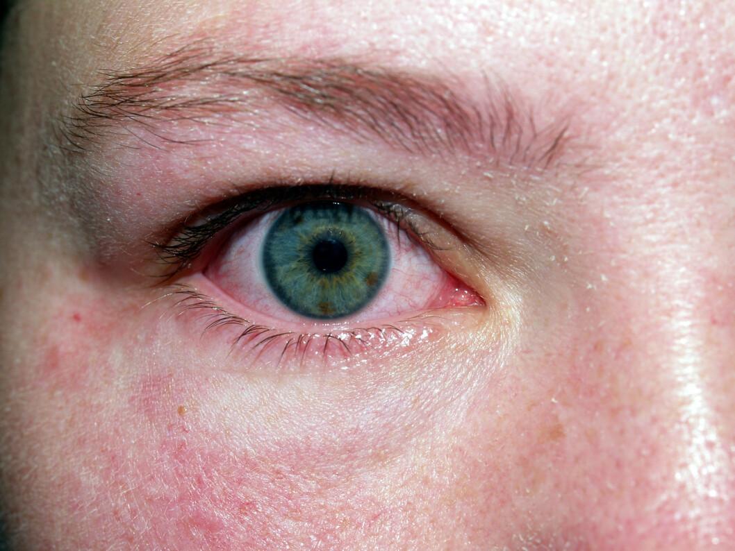 SÅRT OG UBEHAGELIG: Røde øyne kan være utrolig ubehaglig.  Foto: Kasi Lodrigue - Fotolia