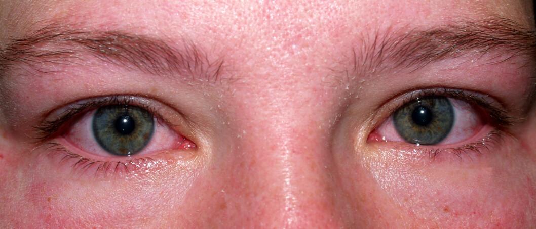 GÅ TIL LEGE: Opplever du at øynene dine er røde og såre? Dersom rødheten ikke forsvinner bør du ta en tur til en øyelege! Foto: Kasi Lodrigue - Fotolia