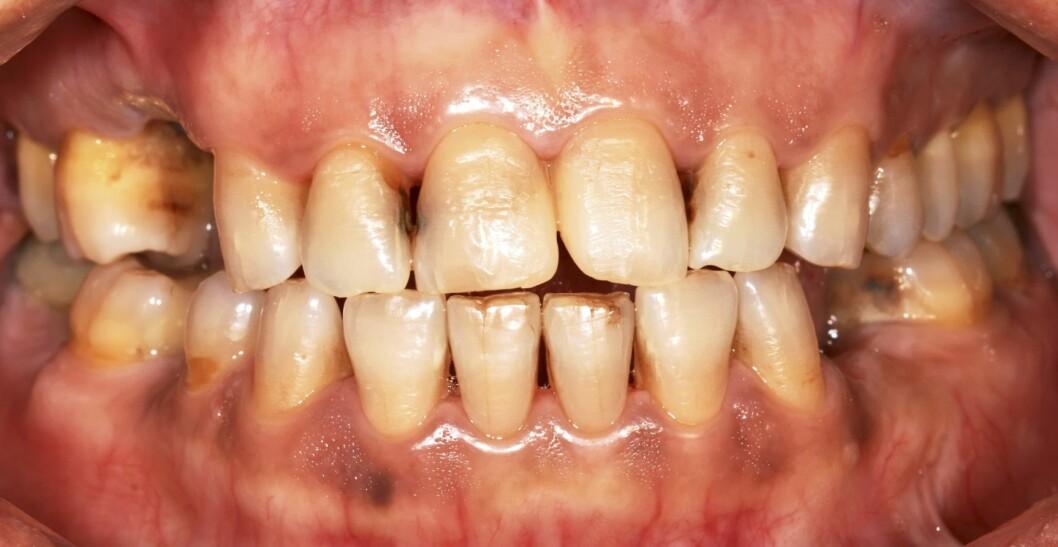 KAN GJØRE ALVORLIG SKADE: Brus - selv om den er lett, har en etsende effekt på tennene om du drikker det mye.  Foto: Thinkstock