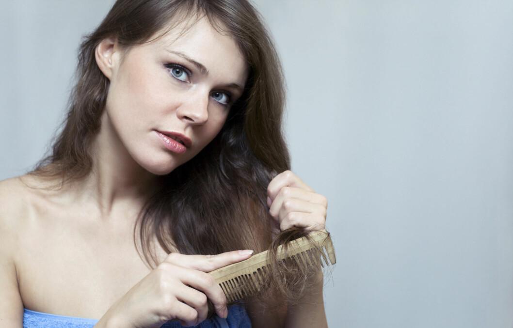 <strong>RAMMER IKKE BARE MENN:</strong> Blant annet kan slankekuren din bidra til at du mister mer hår enn normalt.  Foto: Thinkstock.com