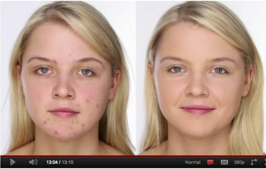 FØR OG ETTER: Den anerkjente makeupartisten Lisa Eldridge viser deg hvordan du sminker vekk kvisene så du får en perfekt base til sesongens festsminke – eller til hverdags. Se video lenger ned i saken. Foto: YouTube-kanalen lisaeldridgedotcom