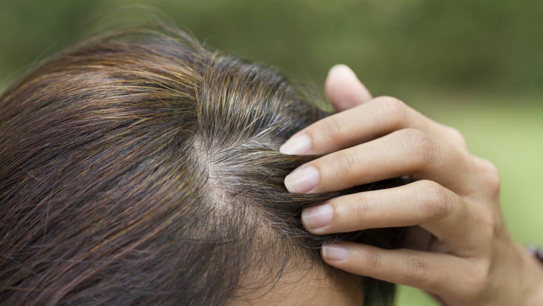 GRÅTT HÅR: De fleste av oss blir grå i håret i tredveårene, men det er ikke uvanlig at det skjer tidligere.  Foto: Scanpix