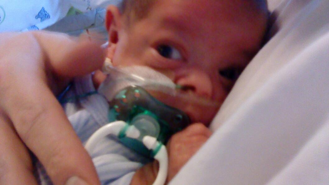 FØDT FOR TIDLIG: Adrian (7) var ekstremt prematur og veide kun 700 gram da han ble født.  Foto: Privat