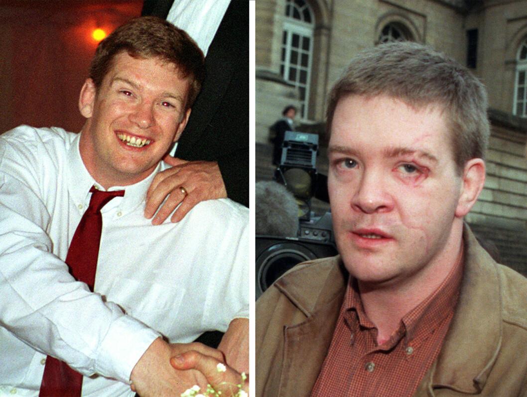 FØR OG ETTER: Trevor Rees-Jones fikk omfattende ansiktskader, men den franske kirurgen Luc Chikhani klarte ved hjelp av familiefotografier og bruk av store mengder titan å rekonstruere ansiktet hans. Foto:  Foto: NTB Scanpix