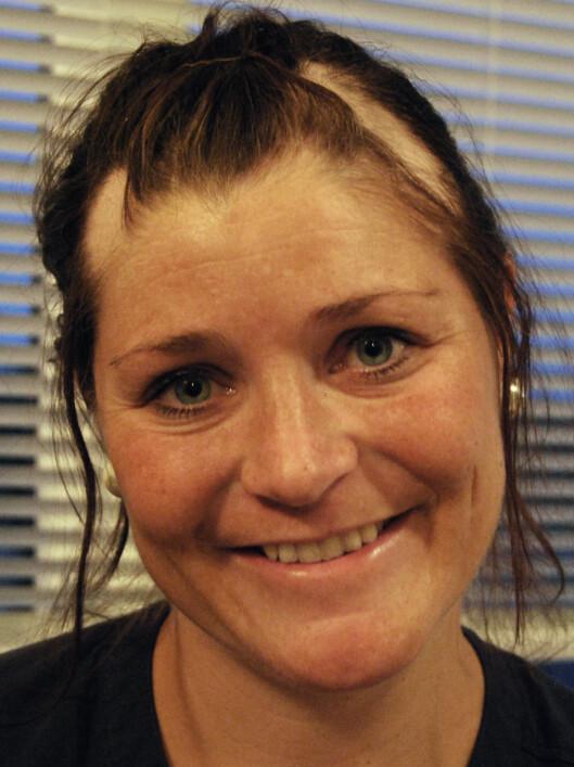 HÅRLØSE FLEKKER: May Brit mistet håret flekkvis, og i starten hadde hun hårløse flekker i hodebunnen. Foto: Privat,