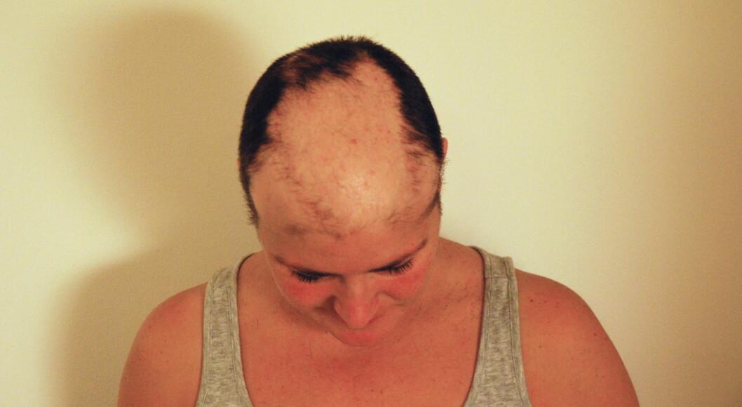 MISTET HÅRET PÅ TOPPEN: May Brit forteller at hun mistet håret på hoppen av hodet, og hadde lange tynne hårstrå langs sidene. Til slutt barberte hun bort alt. Foto: Privat.