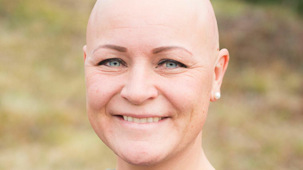 ALOPECIA AREATA: May Brit var 29 år da hun fikk de første hårløse flekkene i hodebunnen. De fleste med sykdommen alopecia areata får symptomer før de fyller 30 år. Foto: Kristin Hefte/Alopeciaforeningen