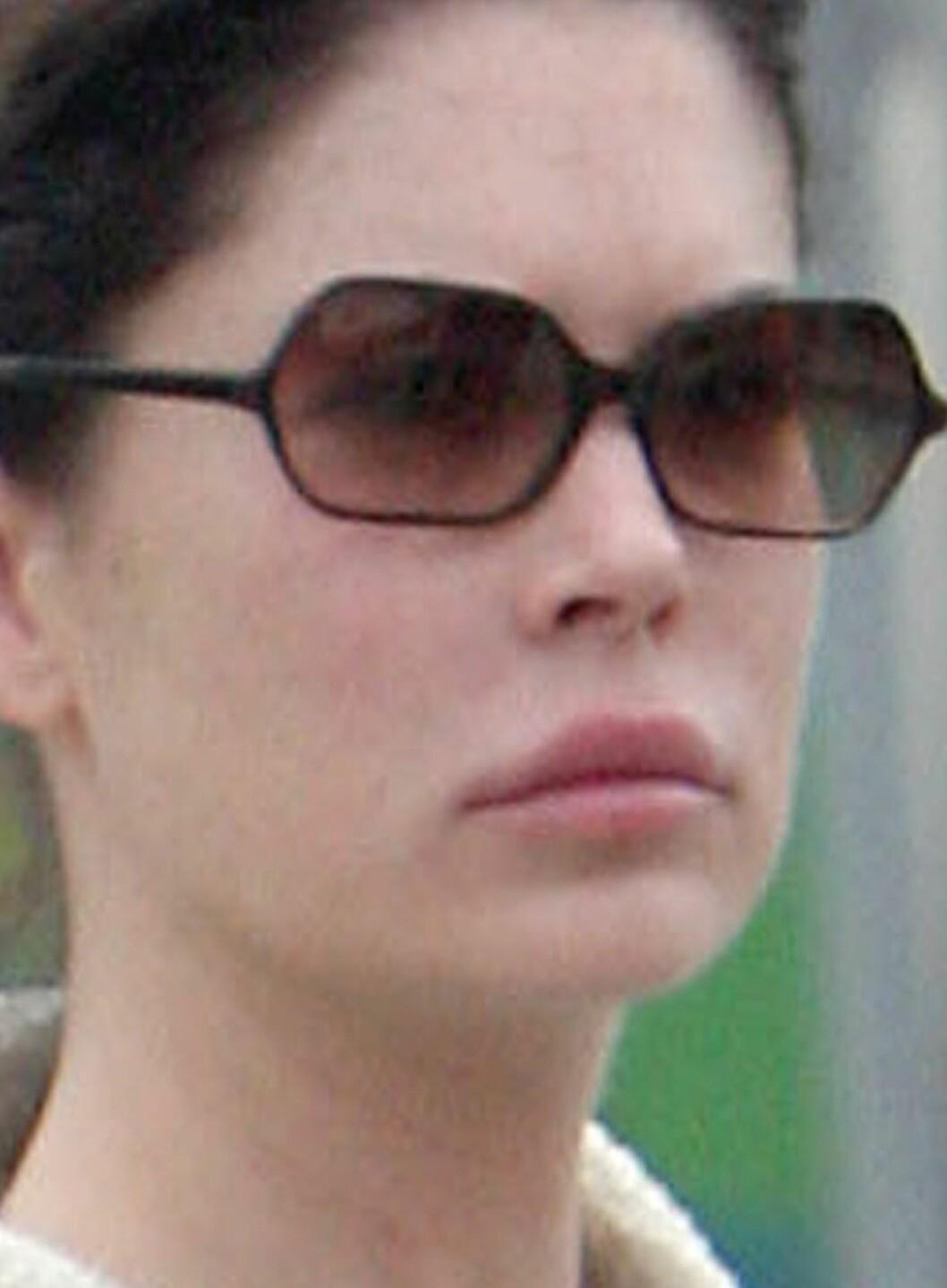 Skuespiller Lara Flynn Boyle ville ha en større overleppe. Det gikk ikke så veldig bra.  Foto: All Over Press