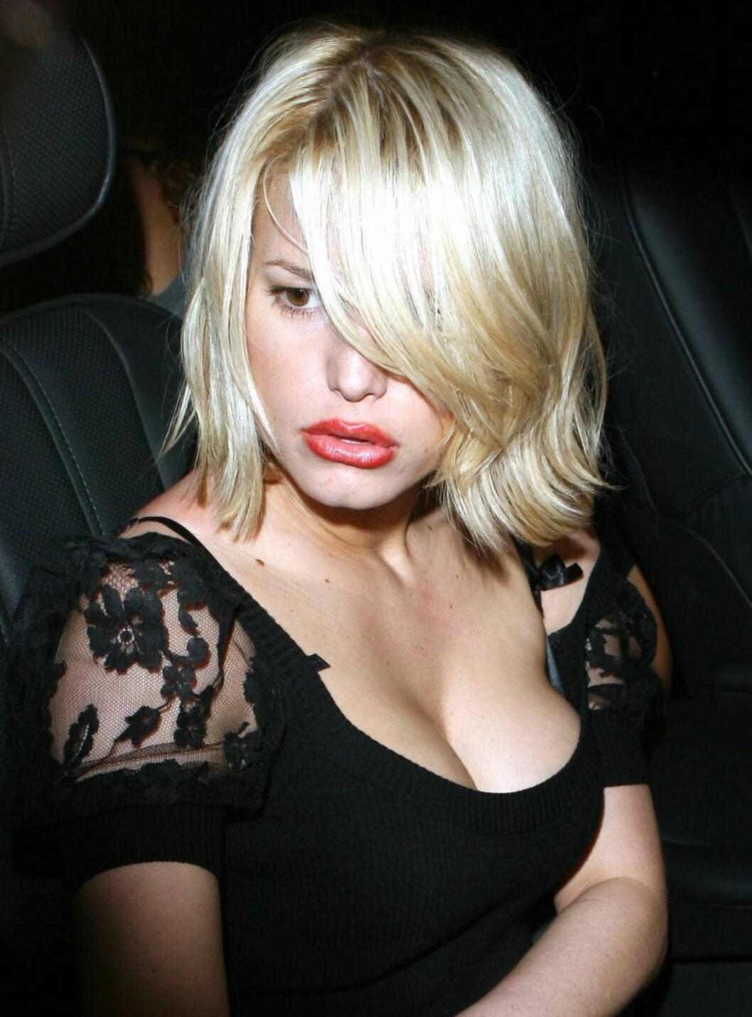Artist Jessica Simpson måtte tåle å få høre at hun ligner en and etter leppeoperasjonen hun hadde i 2006.   Foto: All Over Press