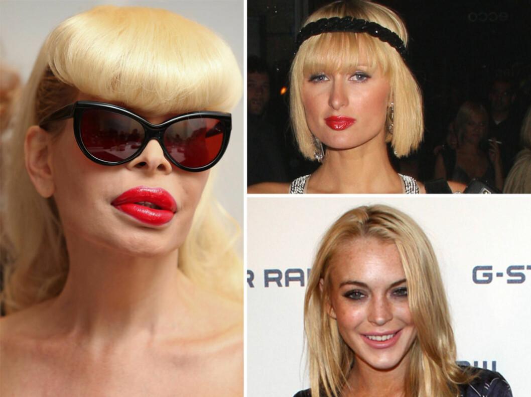 Amanda Lapore (t.v) har brukt astronomiske summer på å gå fra mann til en Barbie-karikerende kvinne. Paris Hilton er heller ikke ukjent med kollagen i leppene. Og Lindsay Lohans lepper har i det siste vokst med flere størelser.