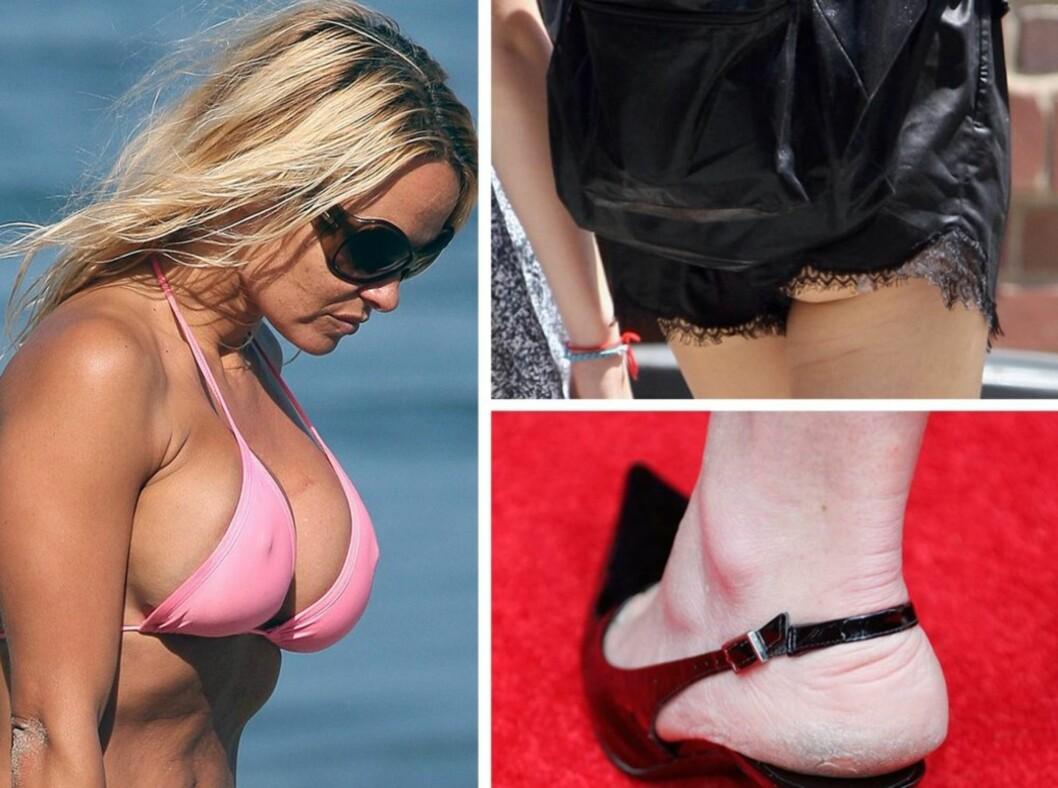 HER GÅR DET GALT: Pamela Anderson går for en ørliten bikinitopp denne sommeren, «The Hills» og «The City»-stjernen Whitney Port sverger til naken rumpe mens skuespiller Minnie Driver slår et slag for grov grå hud på hælen.  Foto: All Over Press