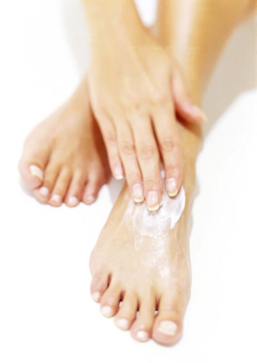 Vær flink å smøre føttene, så forebygger du hard hud. Foto: Colourbox