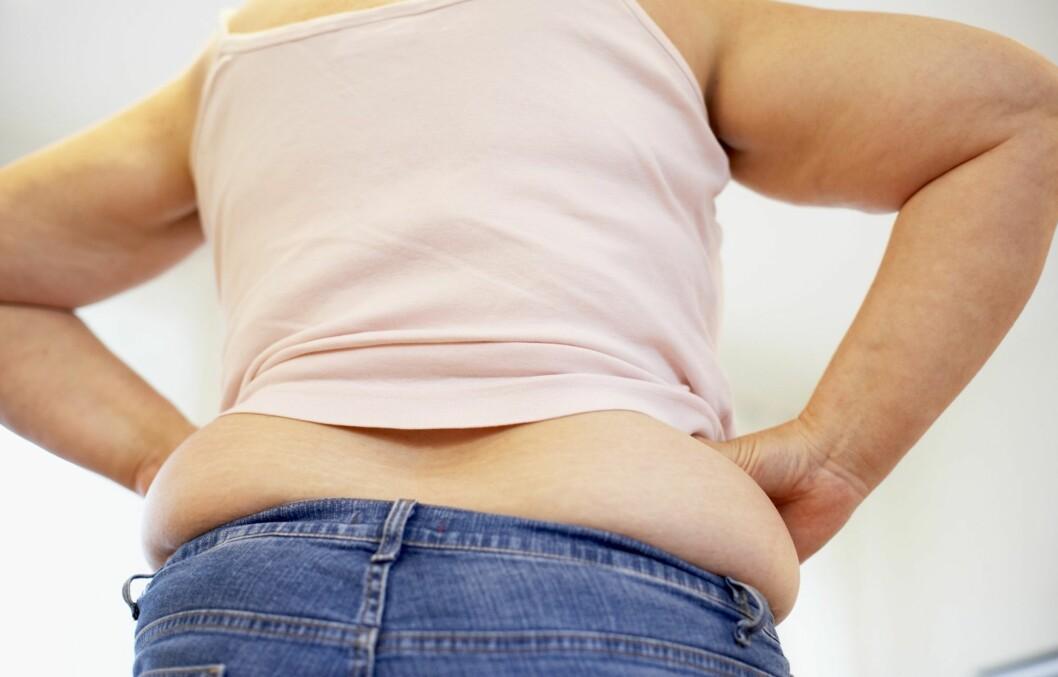 <strong>FEDME OG OVERVEKT:</strong>  At for stort inntak av usunn mat kan gjøre deg feit er en kjent sak. Men visste du at det å være overvektig eller lide av fedme også kan krympe hjernen din? Foto: Panther Media