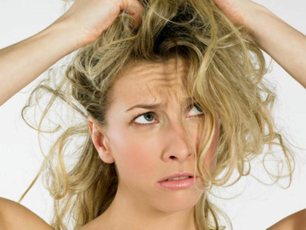 DÅRLIG HÅRÅRSTID: Vinteren kan være en tøff tid for både håret og hodebunnen. Vi har samlet stylistens aller beste råd for å komme seg gjennom de kalde månedene.  Foto: All Over Press