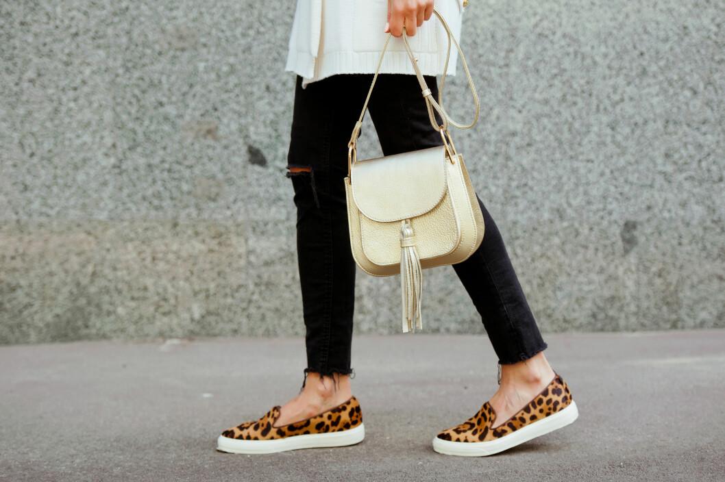 UHELDIG UTFALL: Bare bein og klamme sko kan føre til fotstopp. Foto: Scanpix