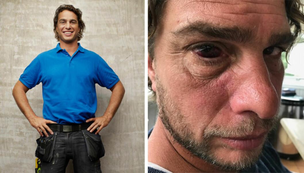 SKADET: Rett før Anders Öfvergård dro til Fiji for å spille inn «Robinsonekspedisjonen», skadet han øyet sitt. Foto: TV Norge / Skjermdump fra Instagram