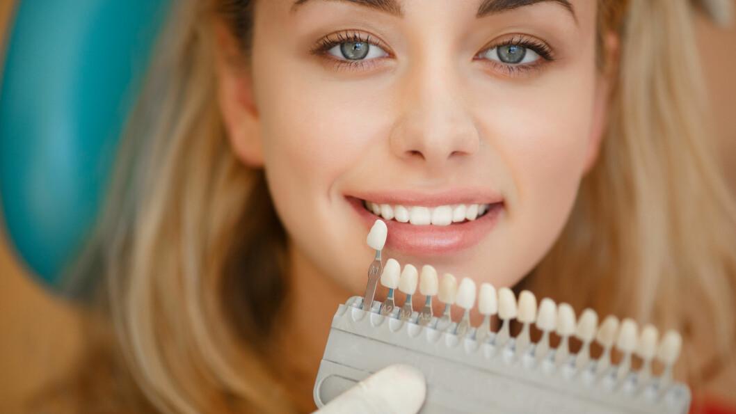 HVITT: Drømmer du om det perfekte hvite smilet? Dette burde du vite før du bleker dem. Foto: armina - Fotolia