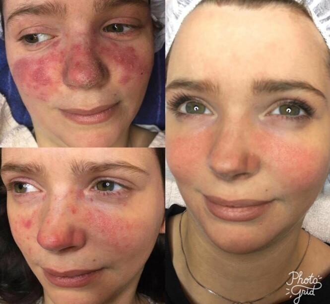 LUPUS: Her er Lone før og etter behandling. FOTO: Sortland vill og vakker spa