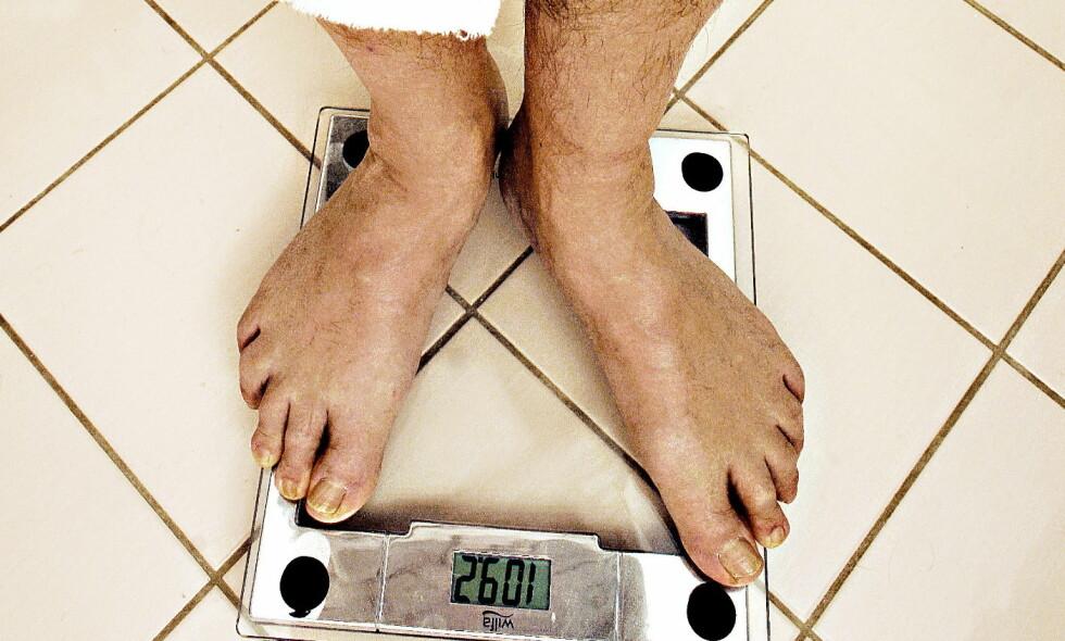 KAN LØNNE SEG: Noen ekstra kilo kan være sunt for hjertet, har du først blitt syk. Men ett råd er enda viktigere. Foto: OLE C. H. THOMASSEN/Dagbladet