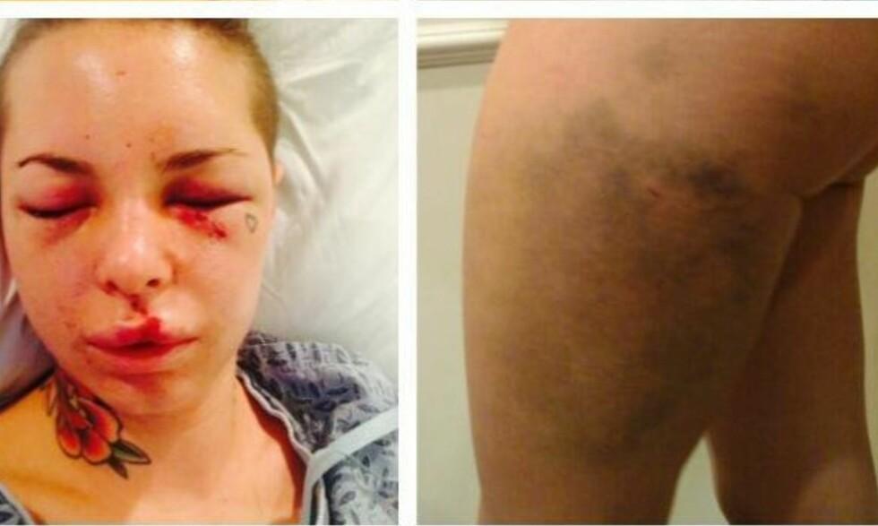 BRUTALT ANGREP: Disse bildene av seg selv publiserte Christy Mack dager etter at hun ble angrepet av eks-kjæresten. Totalt ble hun påført 18 brudd. Ekskjærsten var kjent MMA-profil og er dømt til livstid i fengsel. Foto: Christy Mack