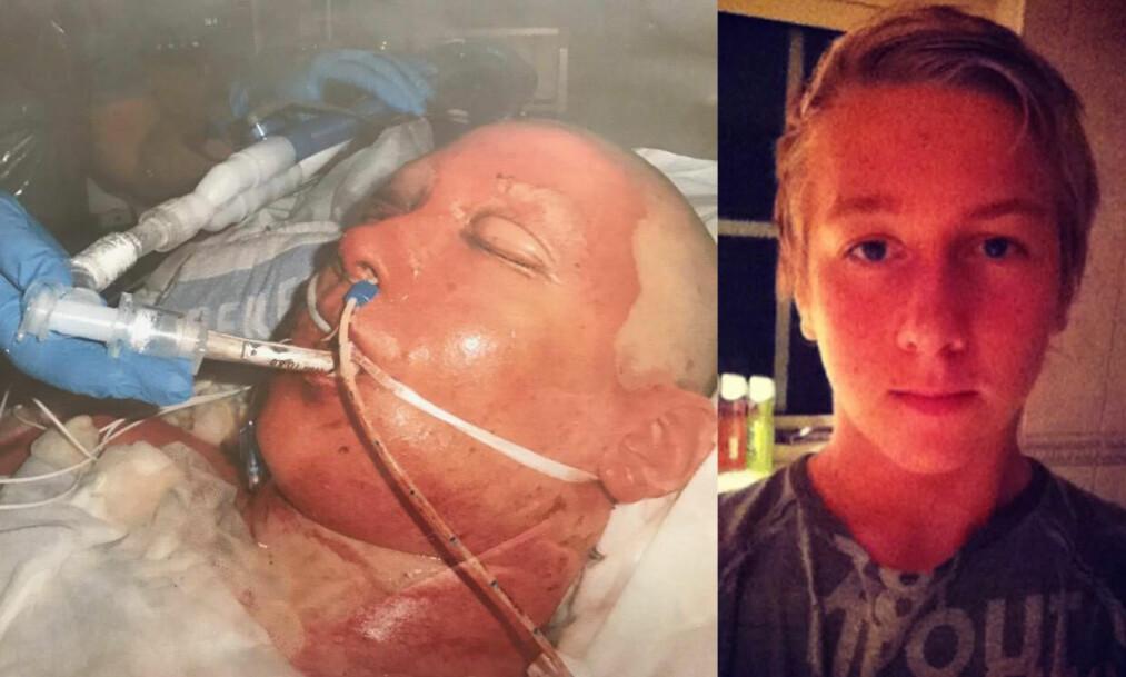 <strong>I FULL BRANN:</strong> Adrian Johansson lå i koma i åtte dager etter å ha fått 16 000 volt i kroppen da han klatret opp i en strømmast. Foto: Privat