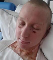 <strong>FRISK:</strong> Tre måneder etter ulykken har Johannesson kun brannskader på brystet og magen.