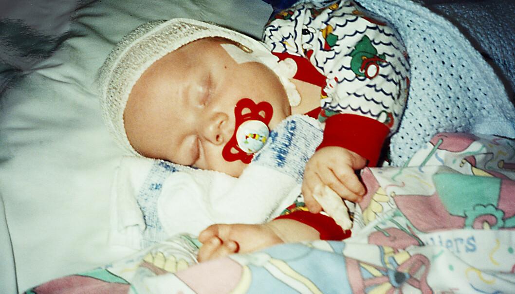 DØDSSYK: Dagen etter barnedåpen fikk Simen voldsom feber på grunn av hjernehinnebetennelse. Foto: Privat