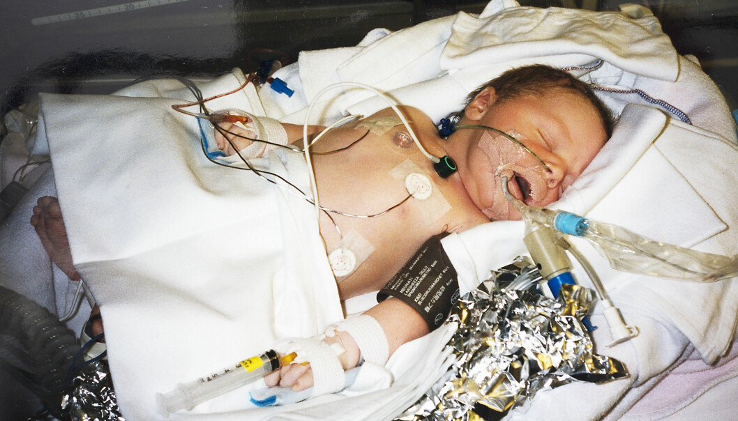 VANSKELIG START: Simen hadde marginene på sin side da han ble født. Men legene våget ikke å gi garantier for at han ikke var hjerneskadd. Foto: Privat