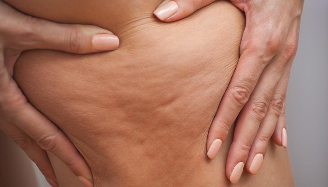 CELLULITTER: - Det finnes mange som tilbyr «løsninger» for cellulitter. Det kan være ulike former for laser, ultralyd, kirurgi, trening eller lignende. Dessverre kan ingen dokumentere varig effekt av noen som helst behandling, sier hudlege. FOTO: NTB Scanpix