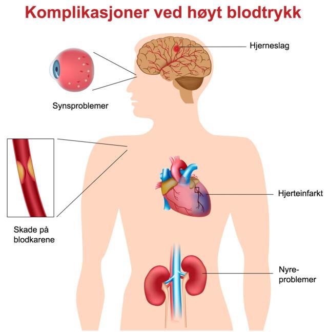 blodtrykk normalt