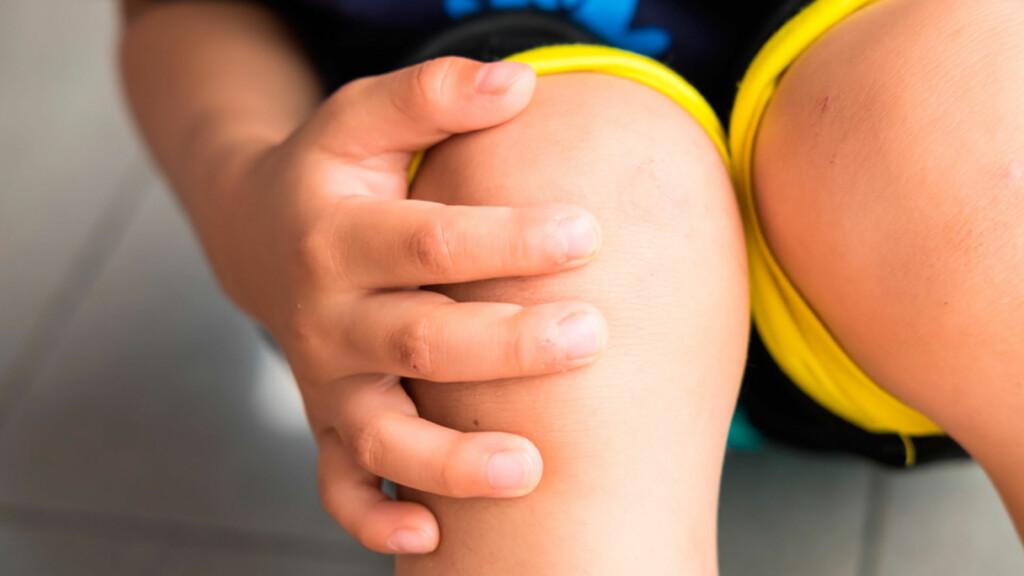 VONDT I KNEET: Knesmerter som øker gradvis over tid hos barn kan være Schlatters sykdom. Foto: NTB Scanpix/Shutterstock