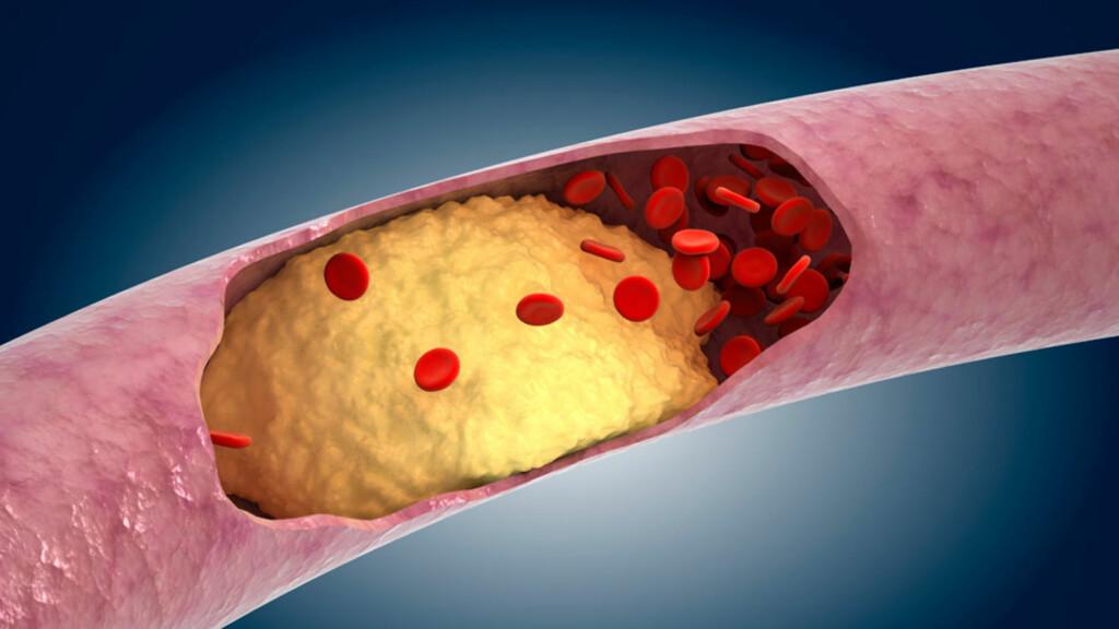 ATEROSKLEROSE: En tilstand hvor fett, kolesterol og andre stoffer avleires i åreveggene og delvis eller helt blokkerer blodstrømming. Foto: NTB Scanpix / Science Photo Library