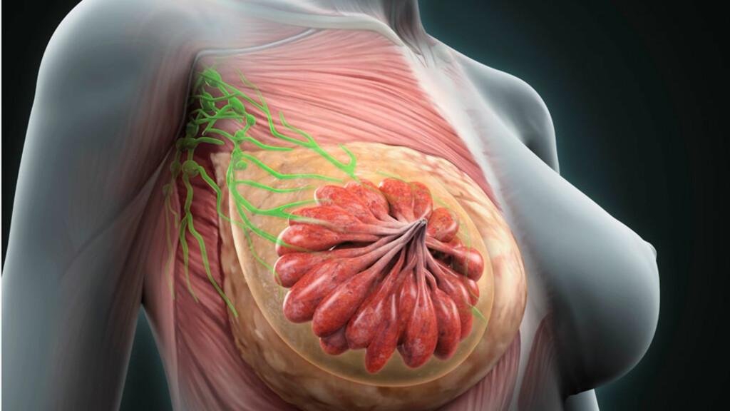 BRYSTKREFT: Brystets anatomi med mange melkekjertler gjør at det ikke er så lett å oppdage en kreftkul. Foto: NTB Scanpix/Shutterstock