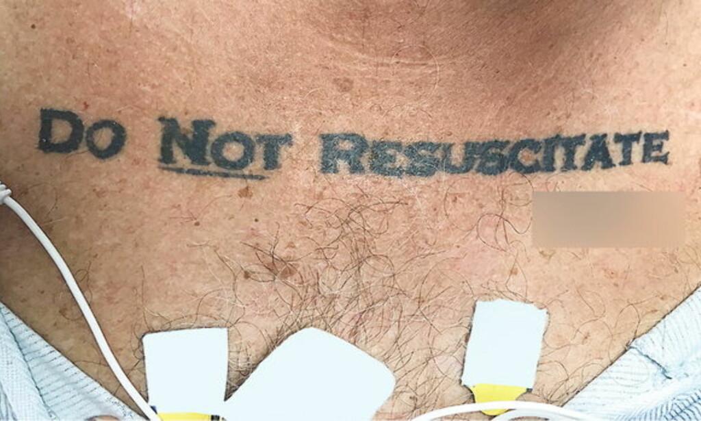 «Ikke gjenoppliv» : Mannen som døde hadde denne tatoveringen på brystet, som betyr «ikke gjenoppliv» på norsk. Foto: University of Miami