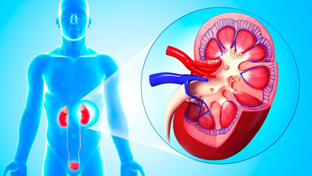 KRONISK NYRESVIKT: Når nyrene ikke klarer å være kroppens renseorgan og skille godt nok ut væske og avfall, oppstår nyresvikt. Utvikler det seg gradvis over tid, kan det bli kronisk. Foto: NTB Scanpix/Science photo