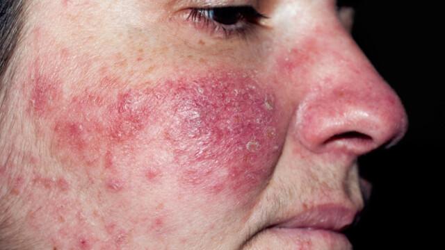 0a242309 HUDSYKDOMMEN ROSACEA: Symptomene er rødhet i ansiktet, synlige blodkar,  rødming og et kviselignende